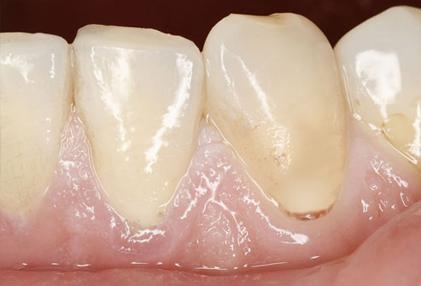 تشقق الاسنان