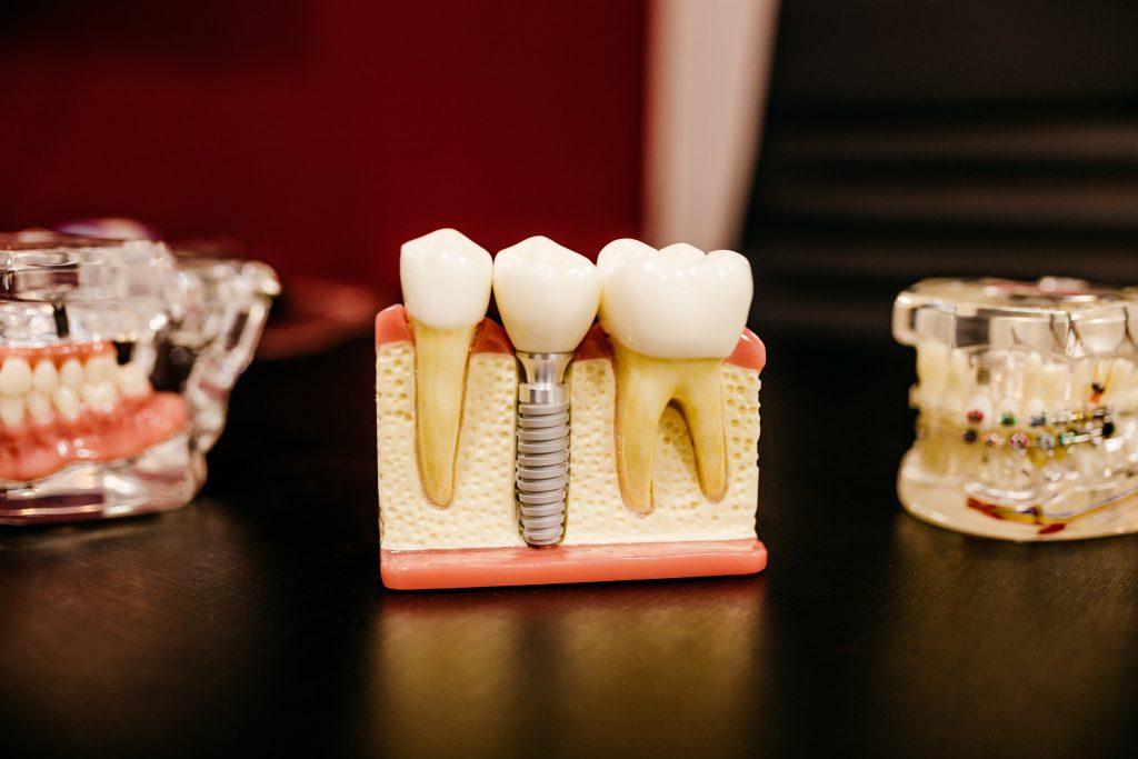 فوائد زراعة الاسنان