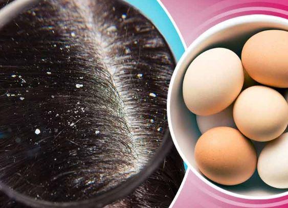فوائد البيض للشعر الدي يعاني من القشرة