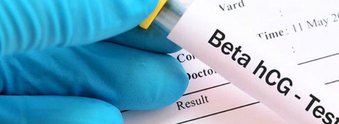 اختبارات الحمل